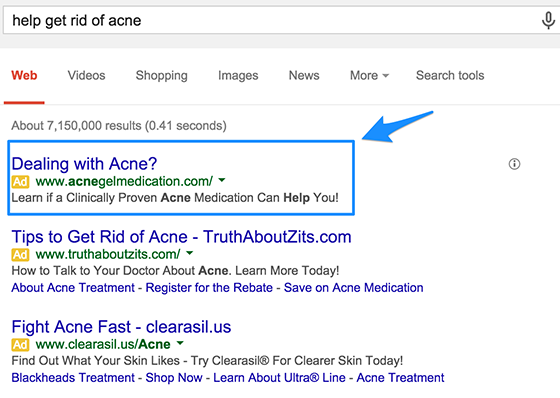 adwords-copy-get-rid-of-acne